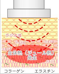図:ラジオ波
