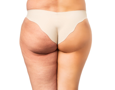 Cellulite treatment, before and after